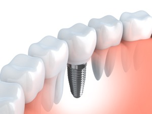 Dental Implants are available at Dentistry at the Inn